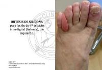 OSTESIS DE SILICONA PARA UN HELOMA INTERDIGITAL