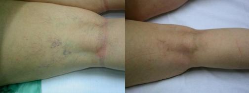 Variculas reticulares en hueco popliteo antes y después de tratamiento