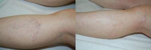 Araña vascular en pierna antes y después del tratamiento con esclerosis