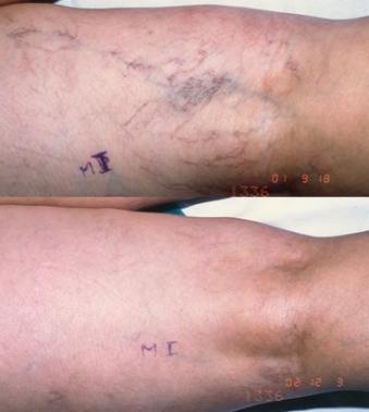 Variculas  reticulares antes y después de esclerosis
