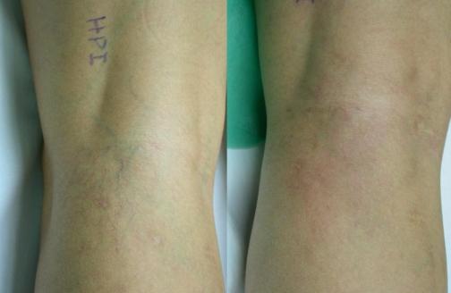 Variculas  en hueco poplíteo antes y después de tratamiento