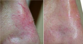 Arañas vasculares nasal tratada con láser Vbeam