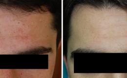 Vitíligo facial