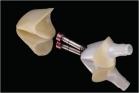 Caso 1 - Pilar CAD y coping de disilicato de litio