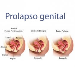 What is female genital prolapse?