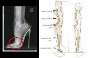 heels and pelvi floor