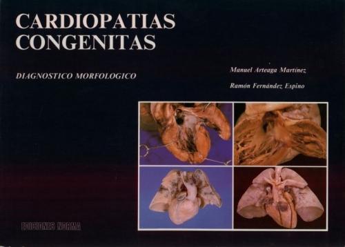 Cardiopatías Congénitas. Diagnóstico morfológico