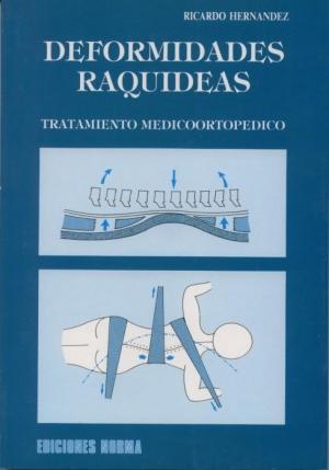 Deformidades raquídeas. Tratamiento medico-ortopédico