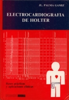 Electrocardiografía de Holter