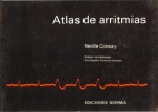 Atlas de Aritmias