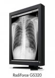 Monitor  diagnostico para CR-DR Torax cod. GS320