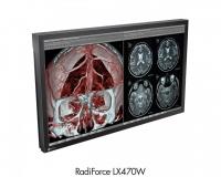 Monitor de quirofano cod. LX470W