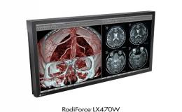 Monitores para quirofano