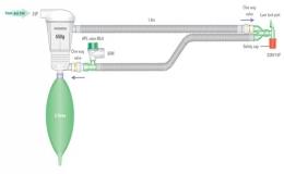 Circuitos respiratorios circulares con cal sodada