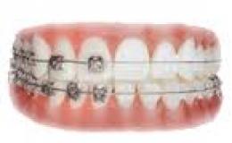 ortodoncia en vallecas