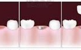 implantes vallecas