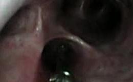 Extracción espiga bronquial