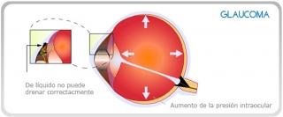 DETECCION GLAUCOMA EN VALENCIA