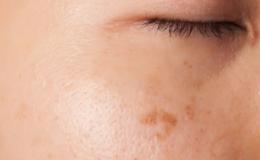 Marcas y cicatrices
