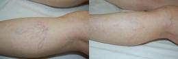 Araña vascular en pierna antes y después del...