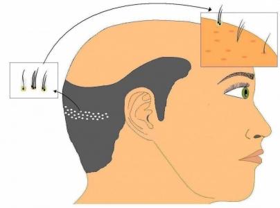 Técnica F.U.E de trasplante de pelo