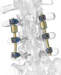 B Dyn - Nuevo Sistema de Estabilización Dinámica Posterior