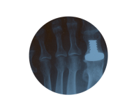Cirugía del Pie