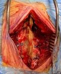 Laminoplastia cervical y resección de meningioma cervical realizada por el Dr. Fernández Alén
