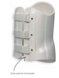 Ortesis toraco-lumbar rígida monovalva para inmovilización en termoplástico, prefabricada.