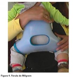 Ortesis de inmovilización de cadera sin articulación, prefabricada.