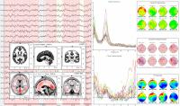 Q-EEG