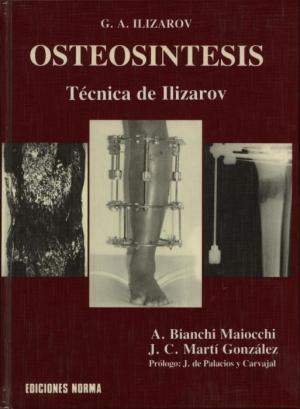 Osteosíntesis Técnica de Ilizarov